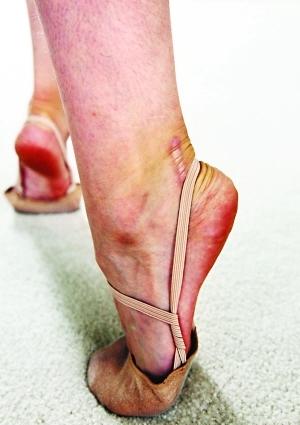 ▲美丽的背后,是她伤痕累累的双脚。