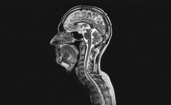像这样的弥散张量成像图(呈现方式与以前的图像不同)可以揭示脑瘤如何影响神经细胞连接,引导医疗人员进行大脑手术。