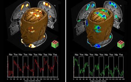 阿德里安・欧文教授利用脑部扫描技术发现患者隐藏的意识,并使他们能够进行交流