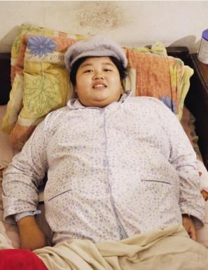 孕期增重80斤孩子出生低血糖