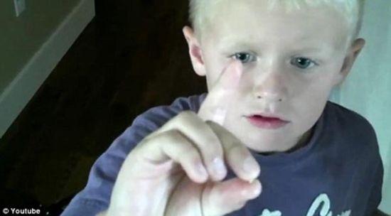 男童用遥控车拔掉自己乳牙
