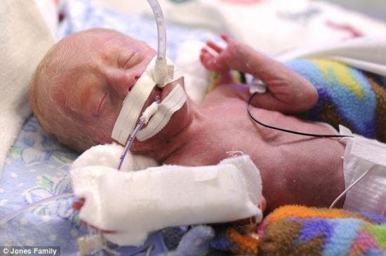 美国一妇女3分钟内产下5胞胎