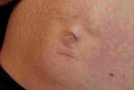 准妈妈凯伦的肚子上出现了一个清晰的婴儿脸部轮廓