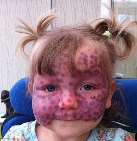 英国2岁女童马蒂尔达
