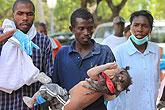 一位父亲抱着孩子前来接受治疗