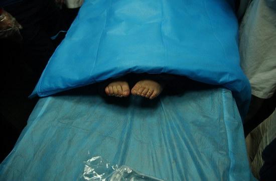 图文:伤痕累累的脚