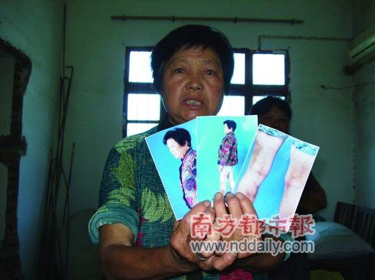 64岁的孙银侠展示被打后留下的照片证据。 摄影:南都记者 占才强
