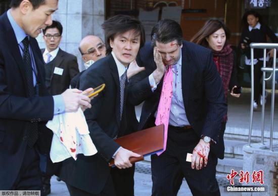 朴槿惠电话慰劳美大使称将防止韩美同盟受影响
