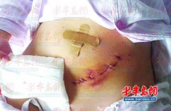 丽人妇科医院微创切口10多厘米医院出院后赔偿