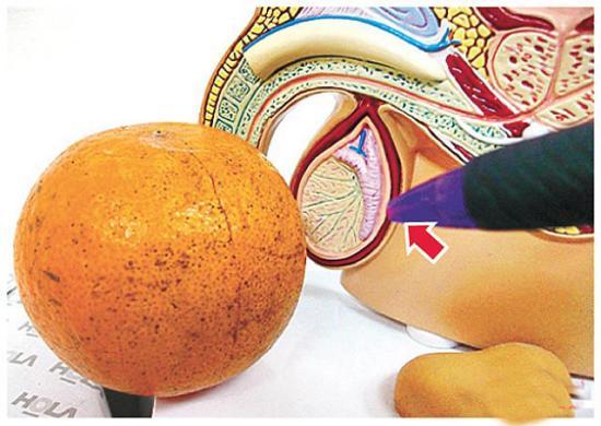 3d口交_台少年让女友为其口交后染怪病 睾丸肿如橘子(图)