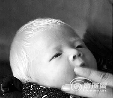 刚出生男婴头发眉毛全白(图)