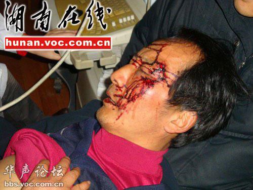 张家界城管被指暴力执法围观者被打断肋骨(图)