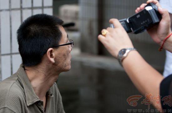 家属院住户陈先生脸上满是被踹的脚印。本报记者 黄利健 摄