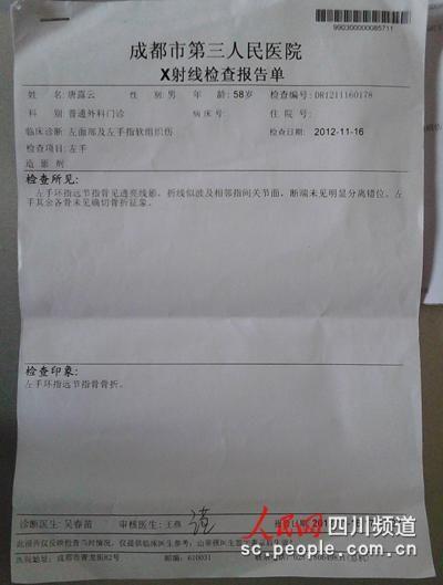 唐露云X射线检查报告单