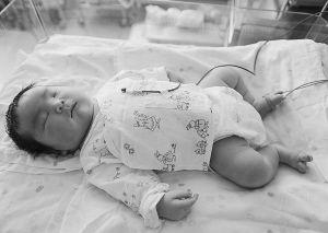 孩子出生时的体重相当于一个满月的孩子。