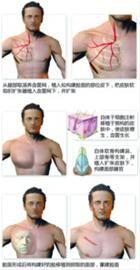 """胸部""""长出""""新脸 6例中国式换脸整形成功"""