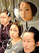 日本美容额头肉圈被斥变态