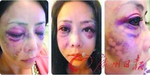 30岁女星被51岁富豪男友虐打至骨折