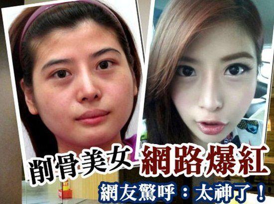 台26岁女子曝削骨整容全程 触目惊心判若两人