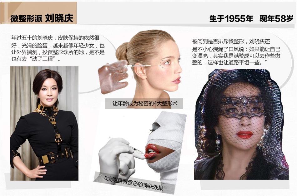 刘晓庆嫩肤有道 表示不排斥微整型