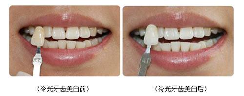 医生吸掉我牙齿上的美白胶,接着又涂抹了一遍新的凝胶,开始第二阶段的图片