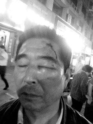 奔驰和电动车发生碰擦,孙师傅头被打破 报料人供图